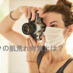 マスクの肌荒れ対策とは?長時間マスク着用時の対策方法